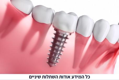 מה זה באמת השתלות שיניים?