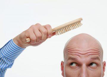 השתלת שיער חשוב להכיר – המידע שחשוב להכיר לפני שפועלים